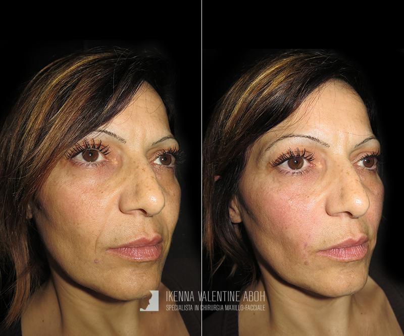 filler naso acido ialuronico